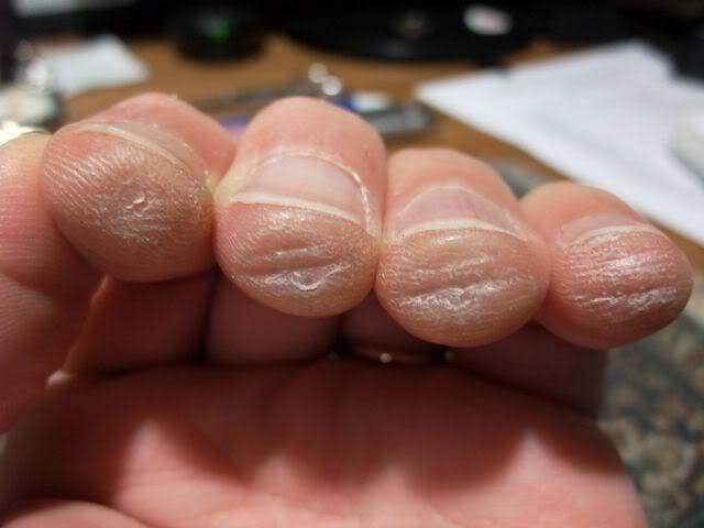 Kết quả hình ảnh cho Luyện tập thường xuyên để hình thành vết chai sớm chơi guitar